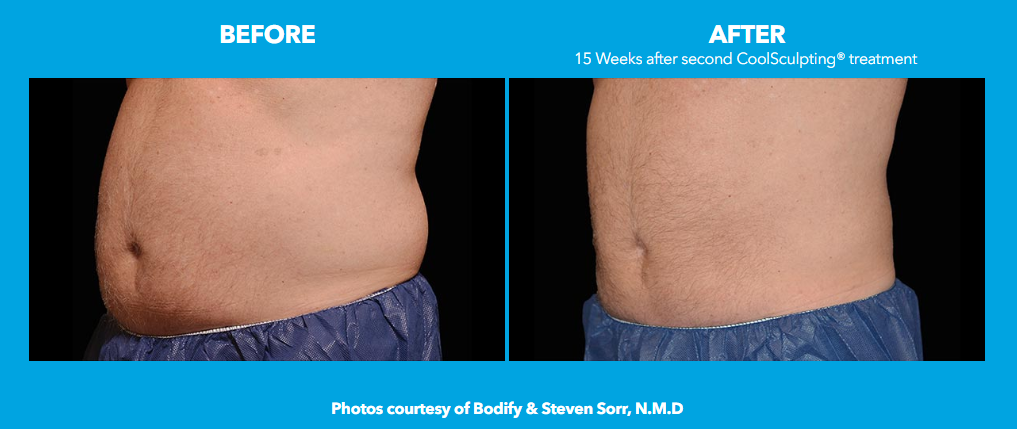 CoolSculpting Male before and after results