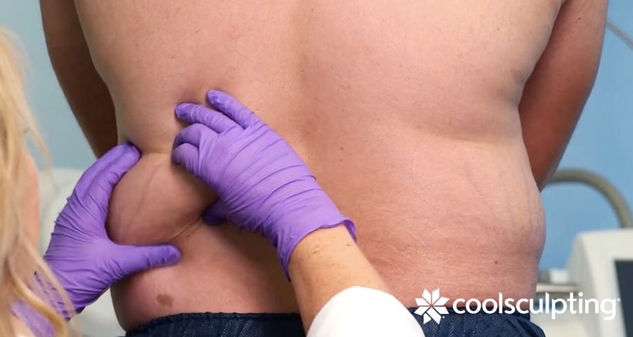 Is CoolSculpting Safe? Male assessment