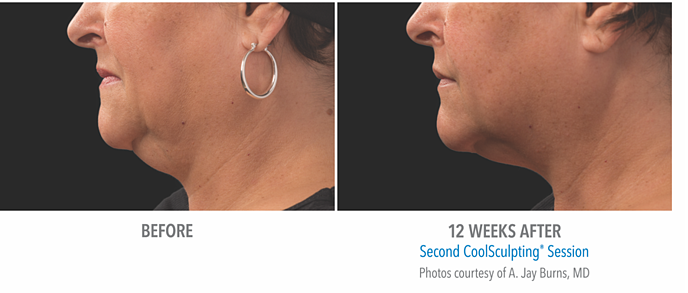 See CoolSculpting® results at 12 weeks when treating a double chin