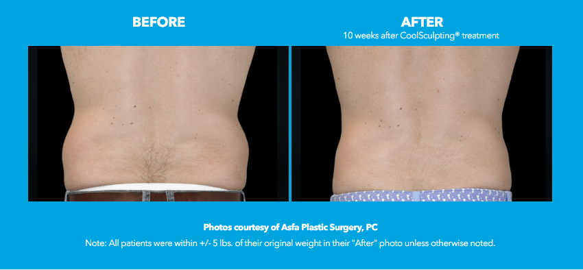 Male CoolSculpting Flanks before and after